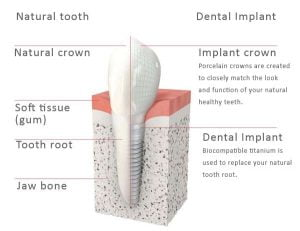 dentalimplantcrownstoothreplacement